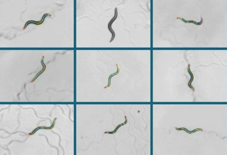 wriggling worms hold clues to our brains