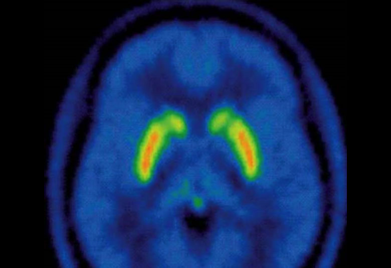 Brain scans in people who use cannabis show that long-term use lowers the level of dopamine (orange), the chemical 'messenger' which plays a key role in the way our brains process reward (Credit: MRC CSC).