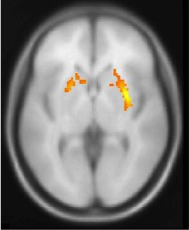 Computer generated brain 'map'