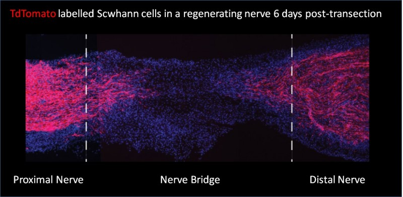 Definition of Schwann cell transcriptome clarifies key role in nerve repair